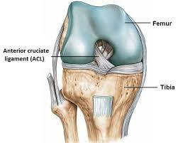Ricostruzione LCA  (legamento crociato anteriore) nel calcio : l'iter riabilitativo secondo i protocolli Fisiomed Italia