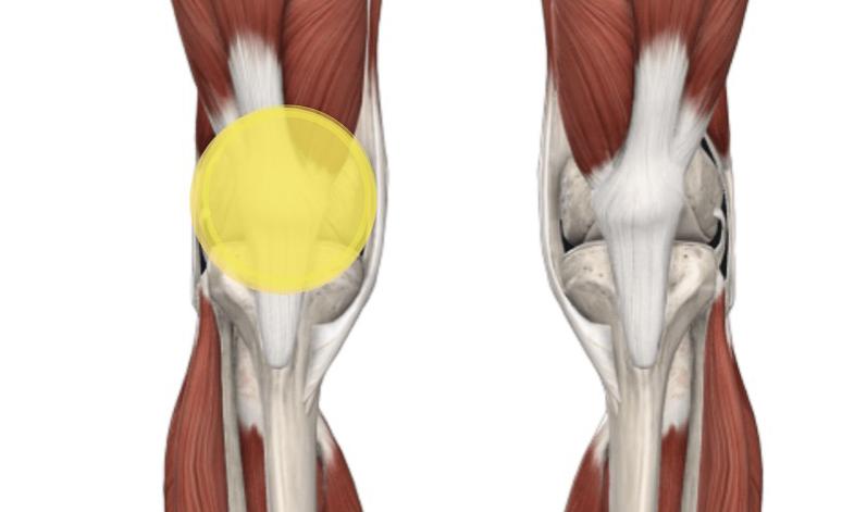 Sindrome da dolore femoro rotuleo: dalla diagnosi al trattamento