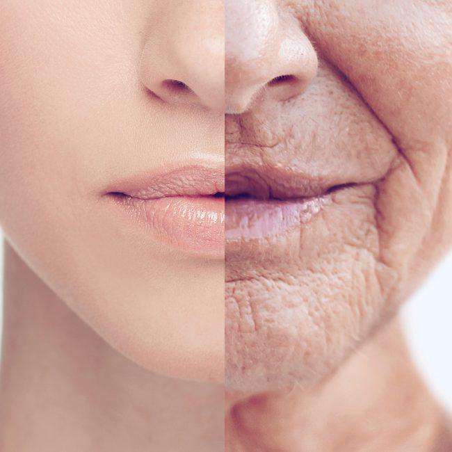 Il Sole e l'Invecchiamento Cutaneo